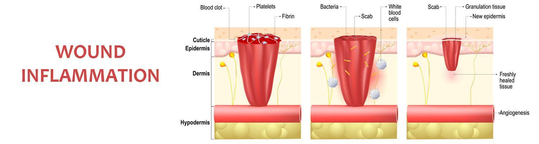 Understanding Wound Inflammation