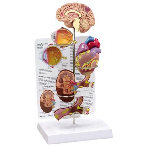 Buy Anatomical Hypertension Model Set