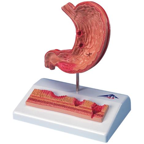A3BS Stomach with Ulcers Model