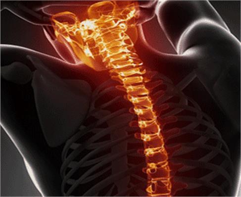 Spinal Injuries